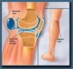 A Bakers Cyst is one of the most common causes of knee pain behind the knee.