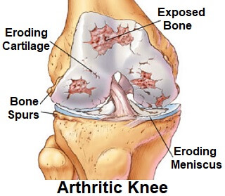 Find out all about the causes of arthritis in the knee