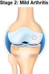 Stage 2 Knee Arthritis
