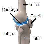 Arthritis pain in knees is caused by damage to the cartilage and bone in the knee joint