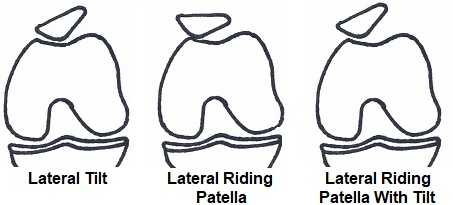 Lateral Release Knee Surgery