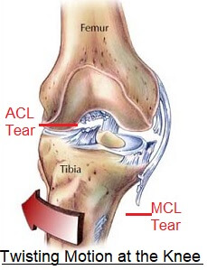 ACL Injury Prevention - Knee Pain Explained