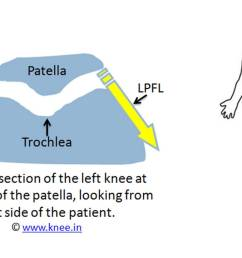normal relation between patella trochlea and its ligaments by deepak goyal [ 1201 x 722 Pixel ]