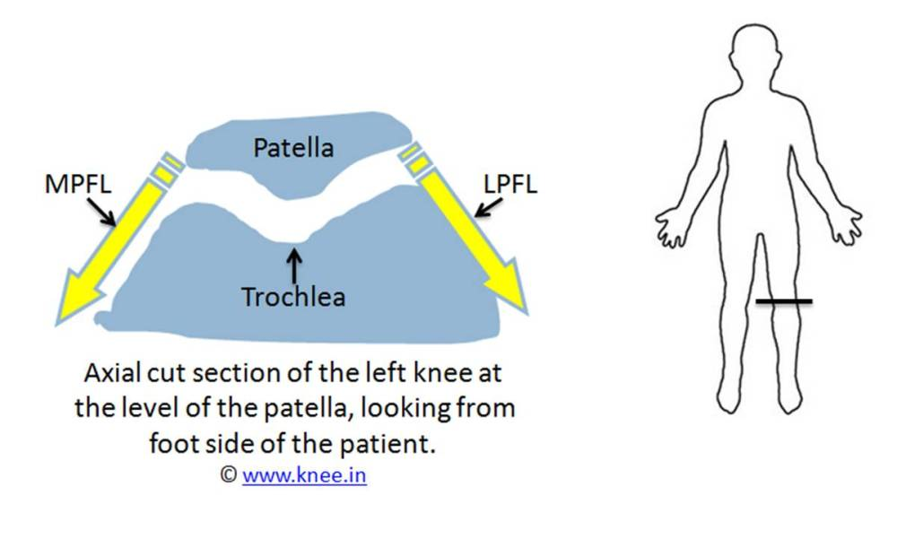 medium resolution of normal relation between patella trochlea and its ligaments by deepak goyal