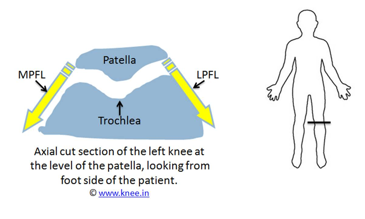 hight resolution of normal relation between patella trochlea and its ligaments by deepak goyal