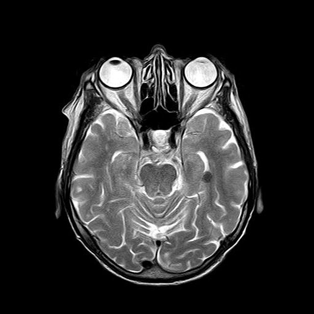 COVID-19 and the brain: What do we know so far?