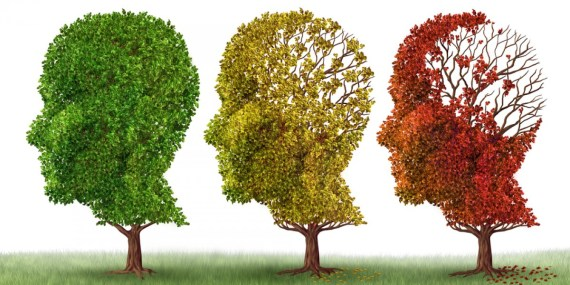 Alzheimer distrugge la memoria ma migliora la creatività e l'efficienza di alcune aree cerebrali