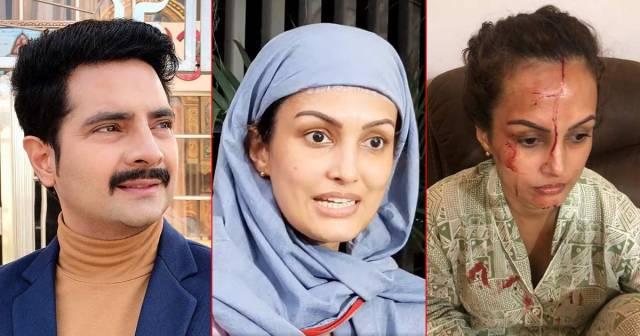 Shocking! Nisha Rawal Shares Disturbing Images Of Injury From Last Night,  Accuses Karan Mehra Of Having A Physical Extramarital Affair