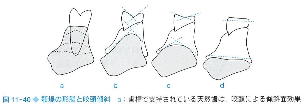 顎堤と咬頭傾斜角