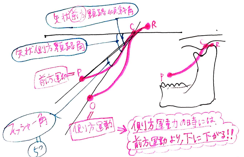 Bennett angle movement 2