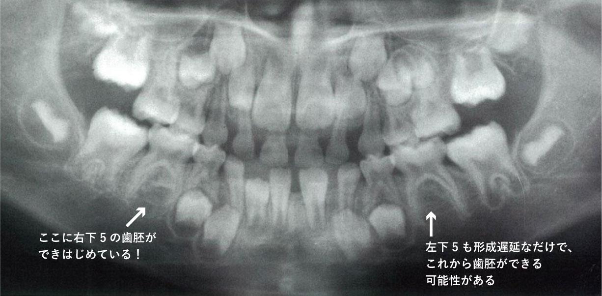 Hellman dental age