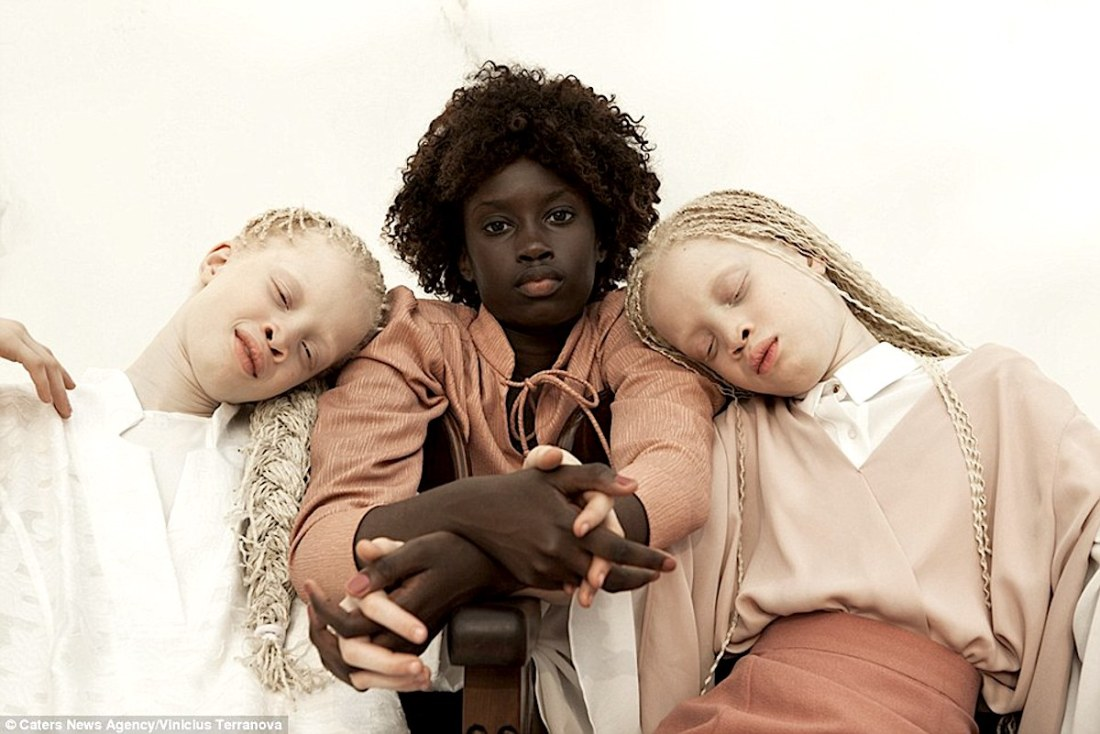 Albinism, African Communities, African Lives, KOLUMN Magazine, KOLUMN