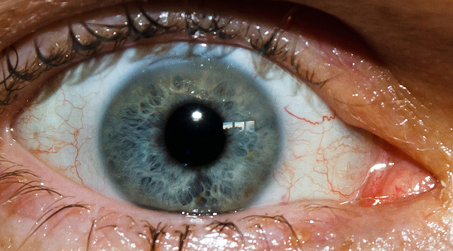 Picture suggestion for Cataract Surgery