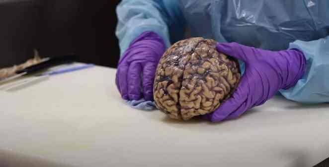 insan beyni inceleme kargo