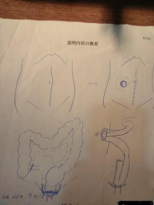 1期手術説明図