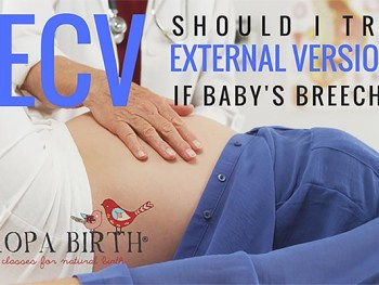 ECV: Should I Try External Version If Baby's Breech?