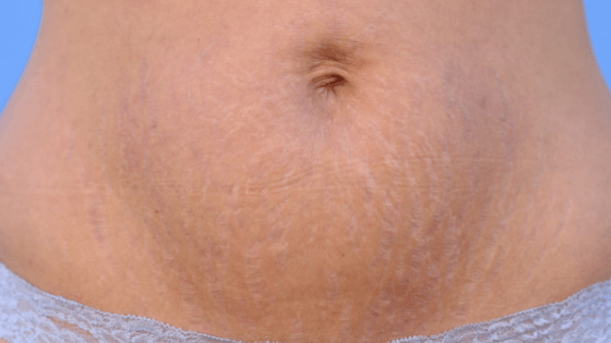 Natural Birth Recovery Time - Stretch Marks