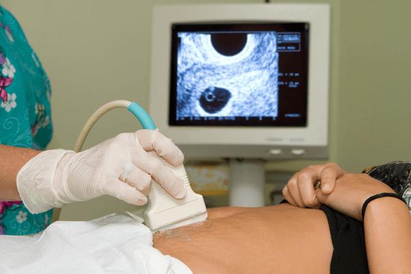 Week 6 pregnancy symptoms