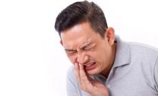 Permalink to 15 Obat Medis Dan Alami Untuk Sakit Gigi Paling Ampuh