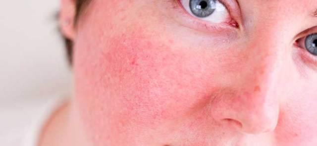 Kan Kılcal Damar Yüz Kızarması