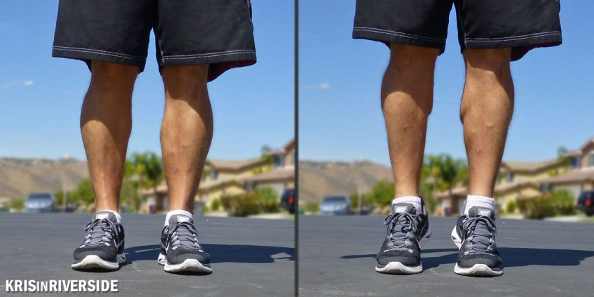 My calves about 8 years after I ruptured my right Achilles tendon.