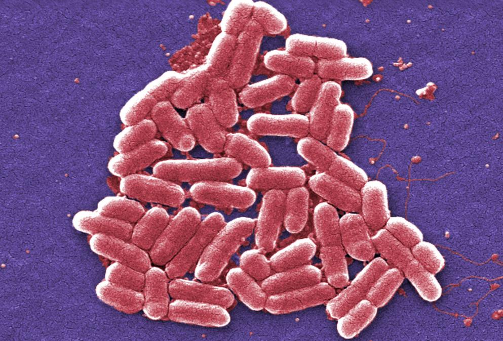Escherichia coli_663647