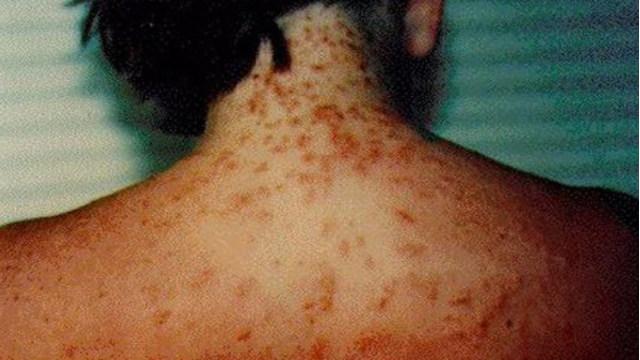 sea lice_1530113813914.jpg.jpg
