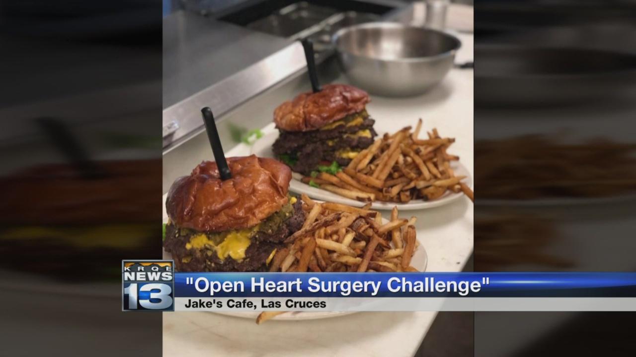 'Open Heart Surgery' cheeseburger challenge_1523404214693.jpg.jpg