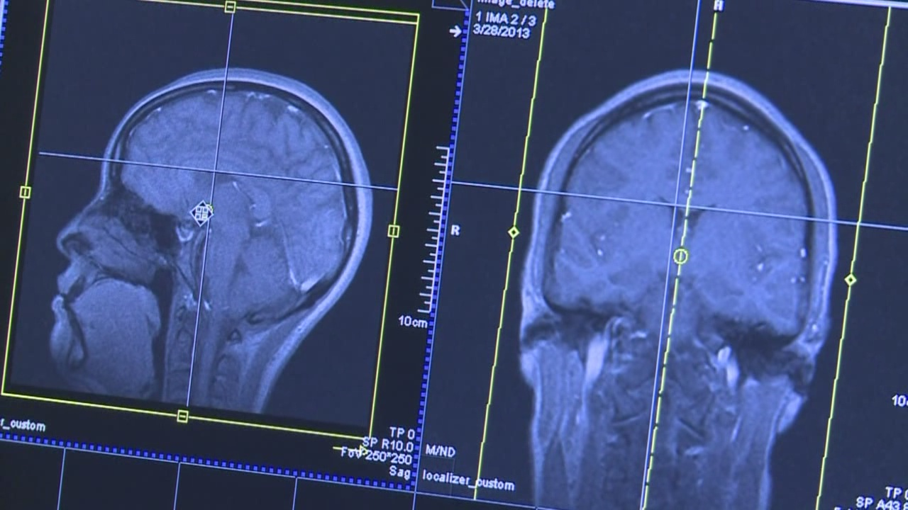Brain Safe Project_81755
