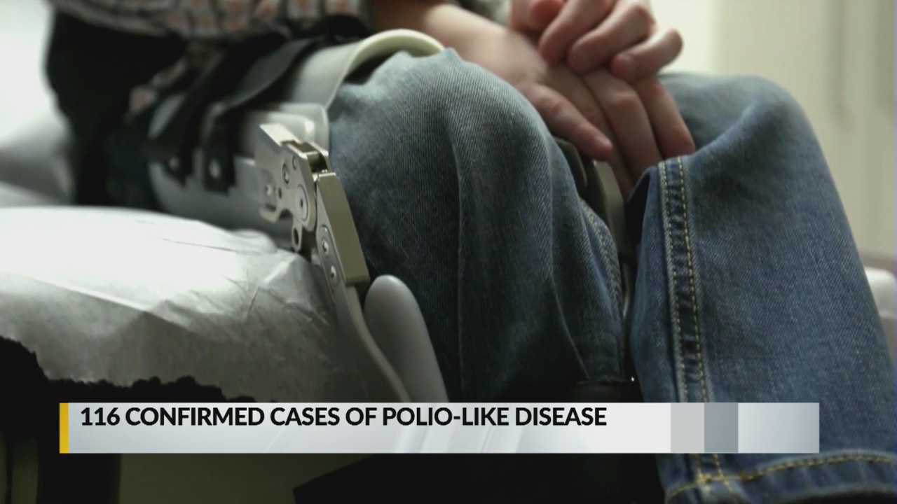 CDC confirms case of polio-like disease in New Mexico_1543279167626.jpg.jpg