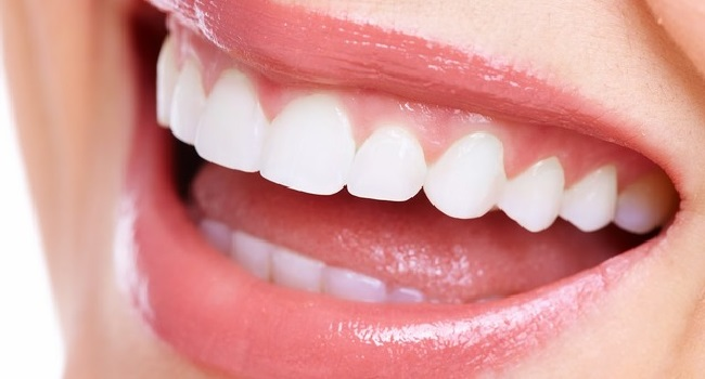 Treat Your Teeth Without Braces