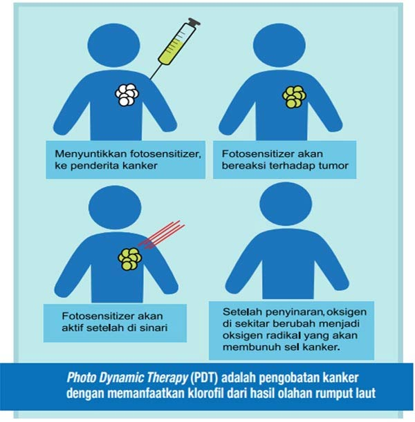 Photo Dynamic Therapy (PDT)