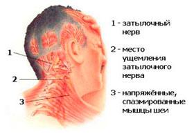 Лечение головной боли в Израиле