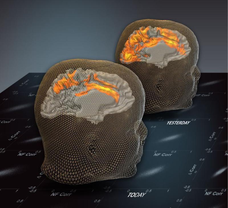 past_brain_activation