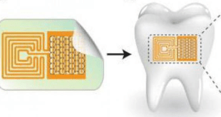A tooth sensor that monitors nutritional intake!