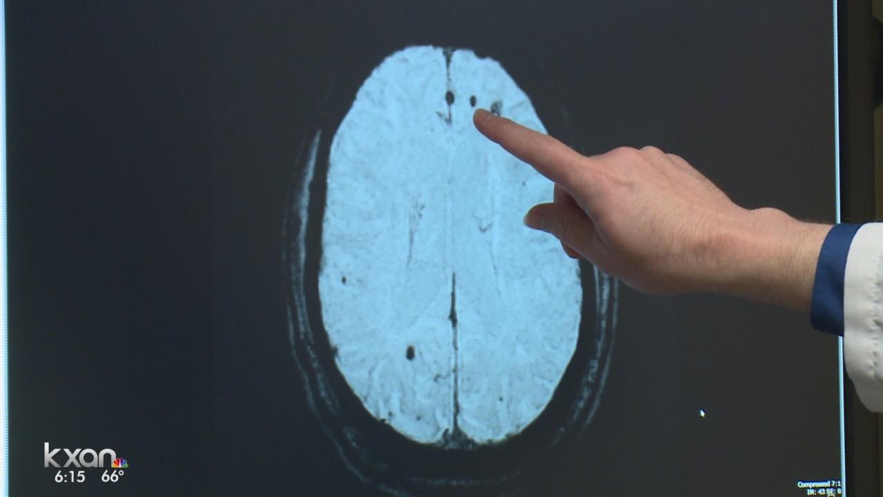 Brain scan - concussion_214344