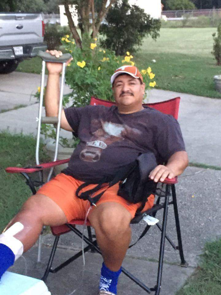 Buda man Adrian Ruiz now home recovering after contracting a flesh eating bacteria in Port Aransas_307813