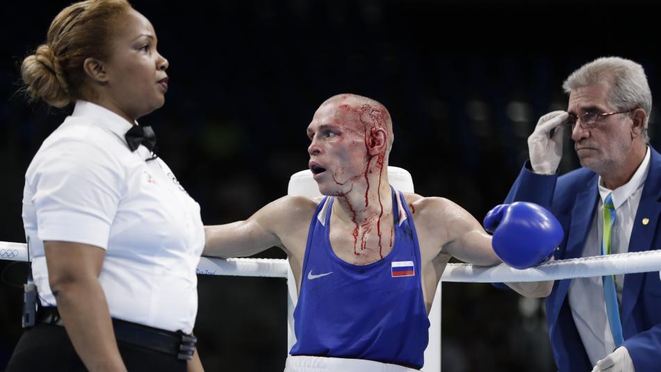 boxingcuts_331345