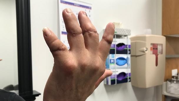 Man's hand restored 2