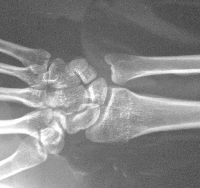 X-ray of a broken wrist