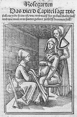 Grabado que ilustra el libro del médico holandés Samuel Janson, 1681