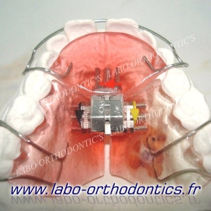 plaque à vérin tridirectionnel (bertoni)