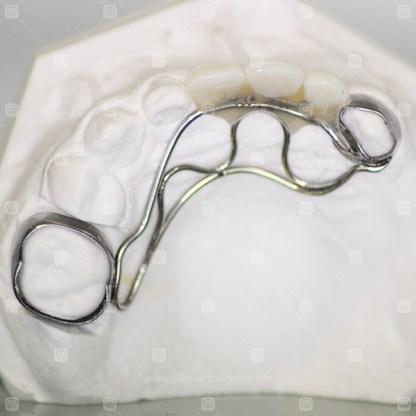 Dents prothétiques sur bagues