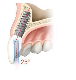 Zahnimplantat 2019: Wo stehen wir heute? Keramik oder Titan? Wie lange hält ein Implantat tatsächlich?
