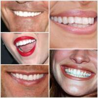 Weisse Zähne! Weiss, weisser am Weissesten! Der Trend zu (noch) weisseren Zähnen