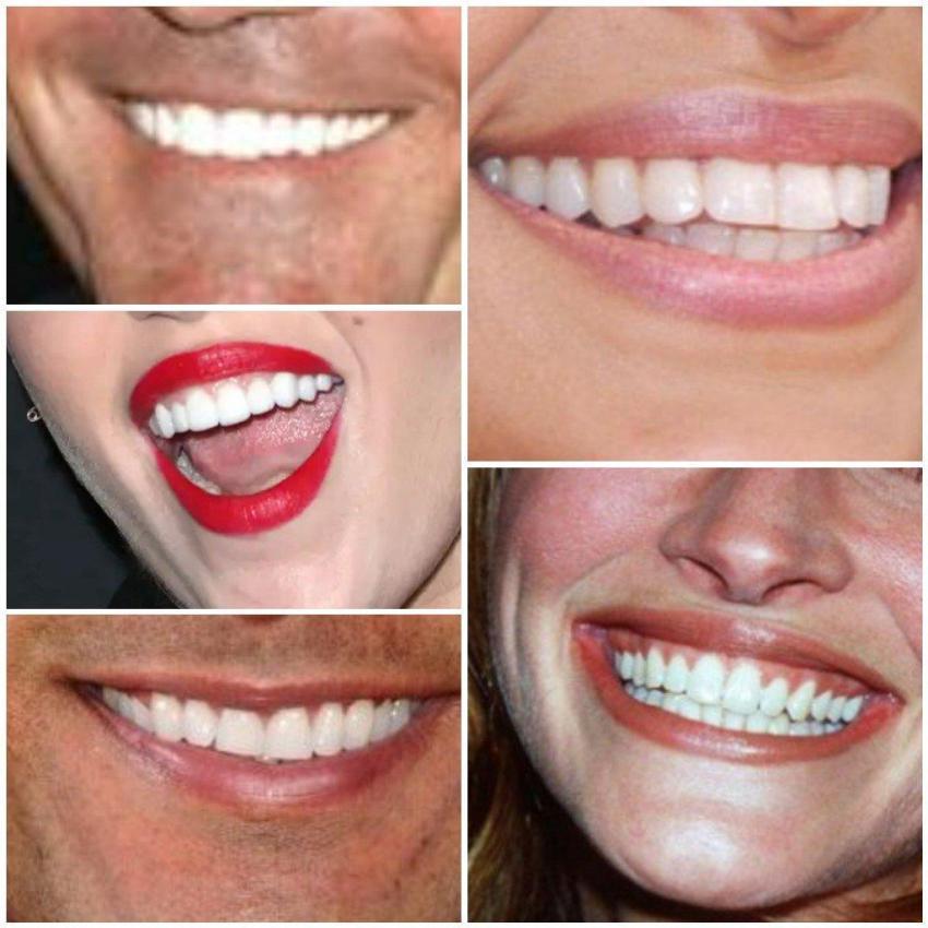 Die Zähne werden immer weisser