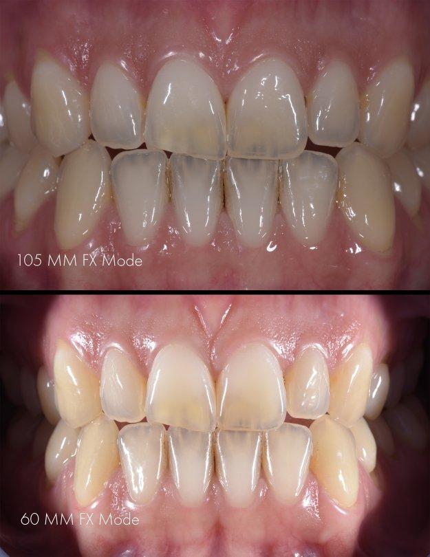 dentale  fotografie makrolinse entscheidet wieviel information auf foto