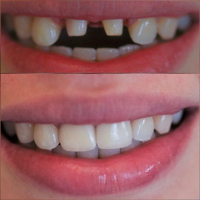 jeder zahn ein unikat individuell angefertigte Zähne