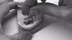 Prothèse implanto-portée