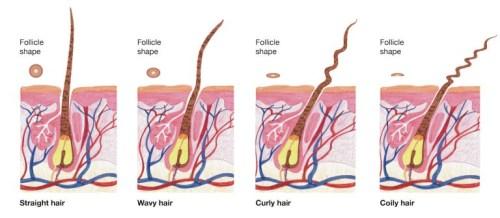 Forme du cheveu en fonction de son implantation dans le cuir chevelu